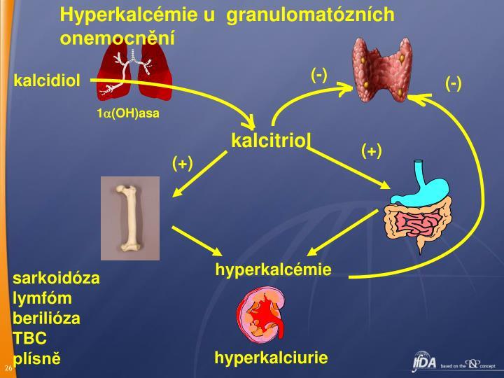 Hyperkalcémie u  granulomatózních onemocnění