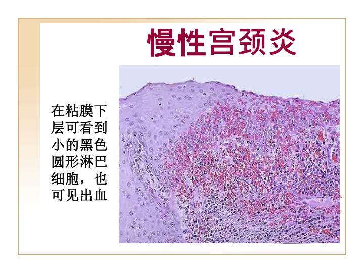 慢性宫颈炎