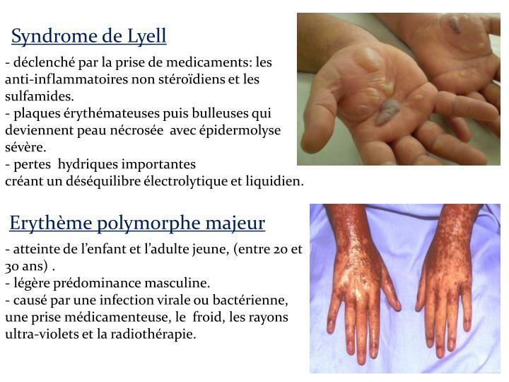 Syndrome de Lyell
