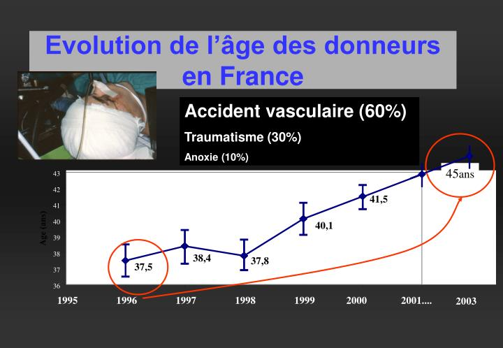 Evolution de l'âge des donneurs en France