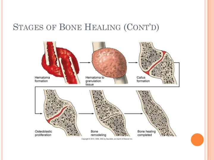 Stages of Bone Healing (Cont'd)