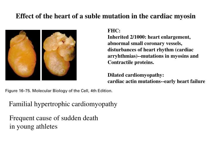 Effect of the heart of a suble mutation in the cardiac myosin
