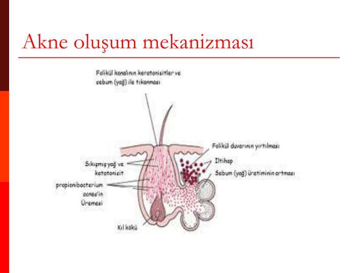 Akne oluşum mekanizması
