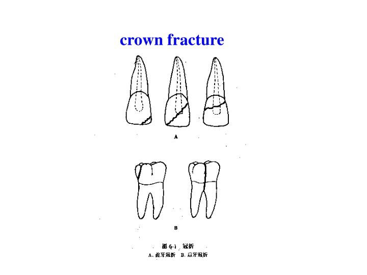 crown fracture