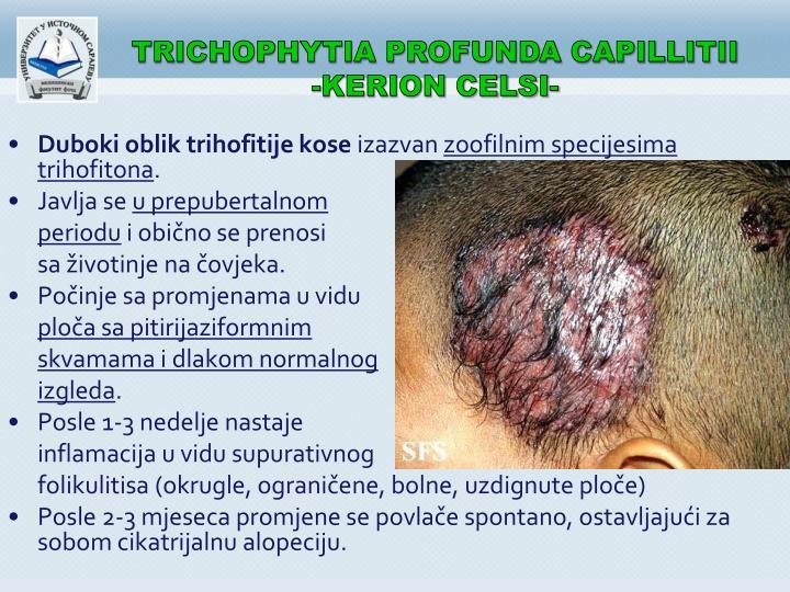 TRICHOPHYTIA PROFUNDA CAPILLITII