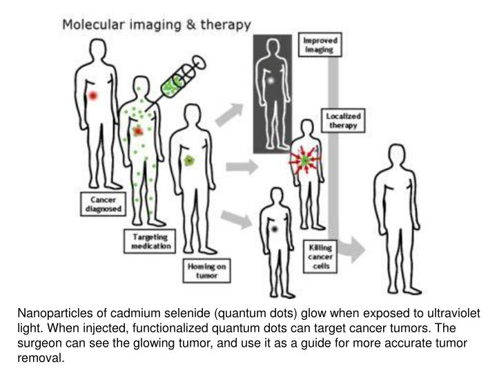 Nanoparticles of cadmium selenide (quantum dots) glow when exposed to ultraviolet light. When injected, functionalized quantum dots can target cancer tumors. The surgeon can see the glowing tumor, and use it as a guide for more accurate tumor removal.