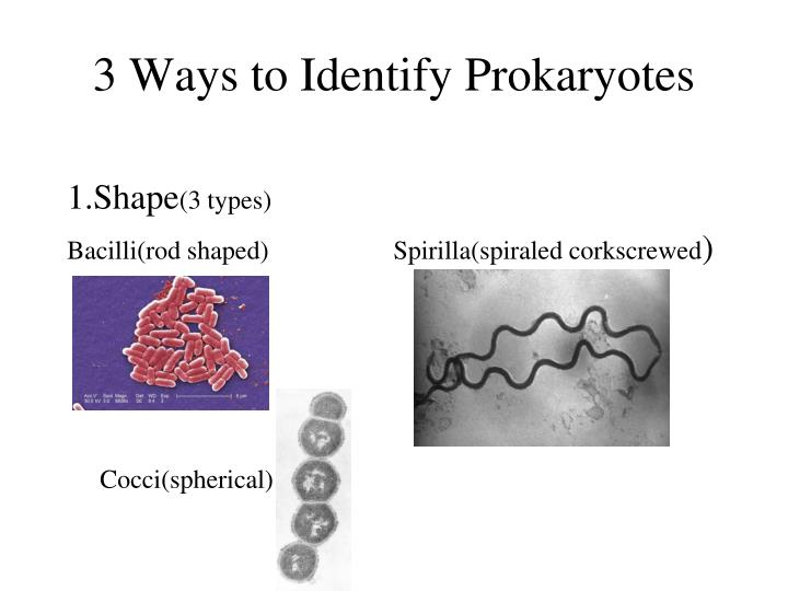 3 Ways to Identify Prokaryotes