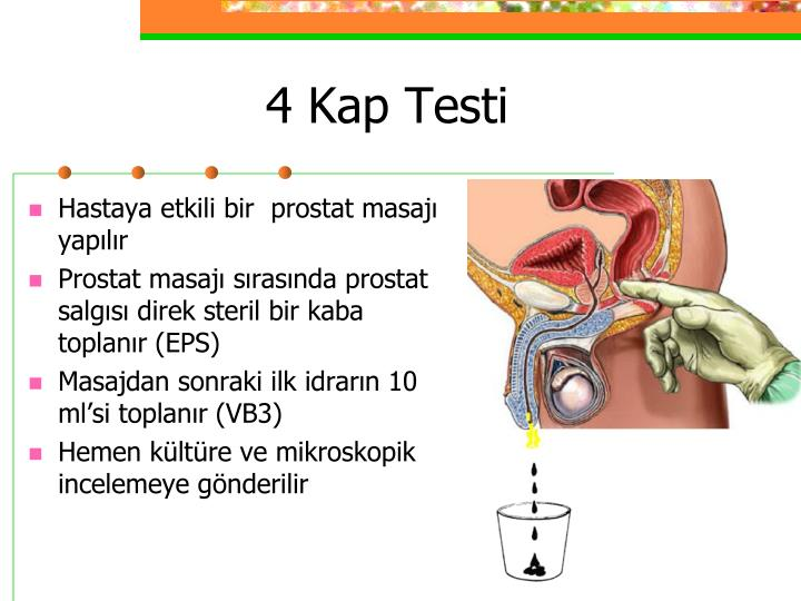 Hastaya etkili bir  prostat masajı yapılır