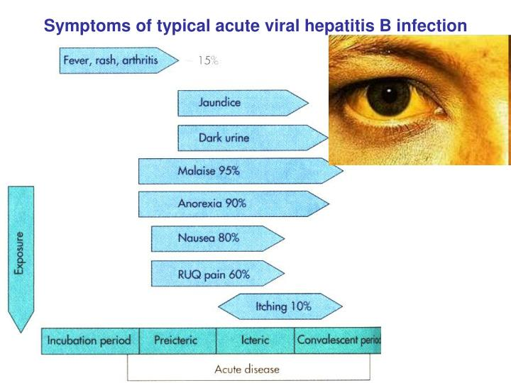 Symptoms of typical acute viral hepatitis B infection