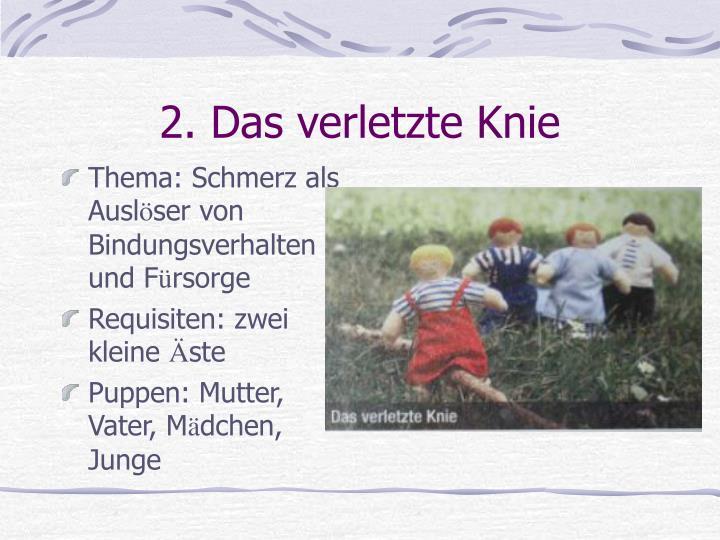 2. Das verletzte Knie
