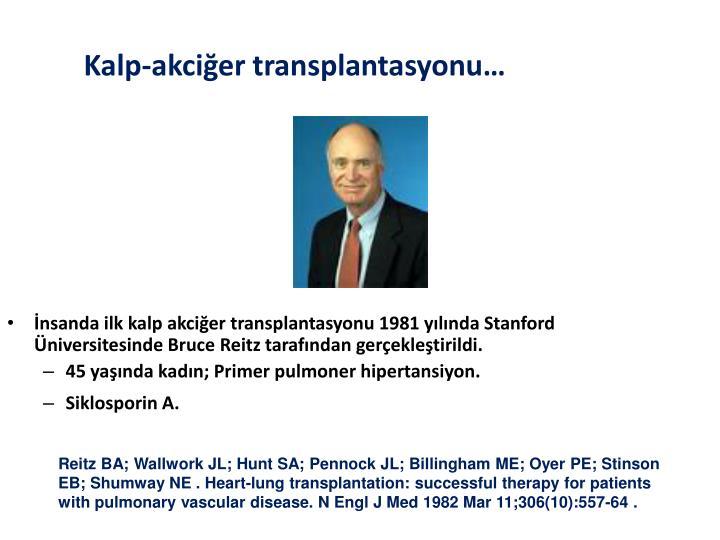 İnsanda ilk kalp akciğer transplantasyonu 1981 yılında Stanford Üniversitesinde Bruce