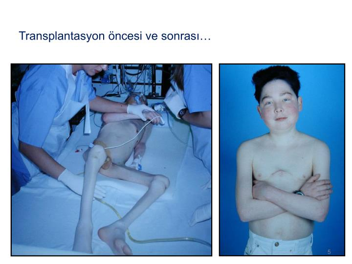 Transplantasyon öncesi ve sonrası…