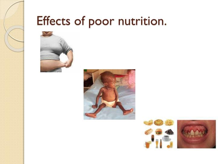 Effects of poor nutrition.