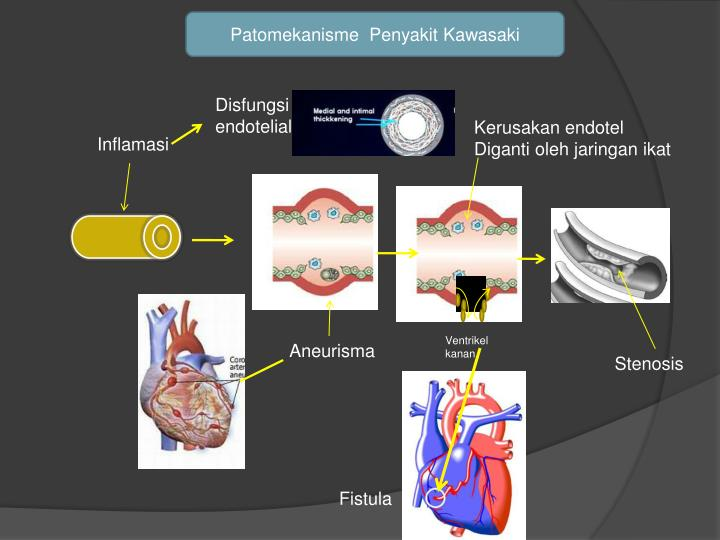Patomekanisme