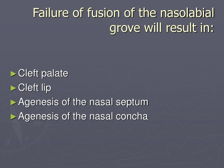 Failure of fusion of the nasolabial grove will result in: