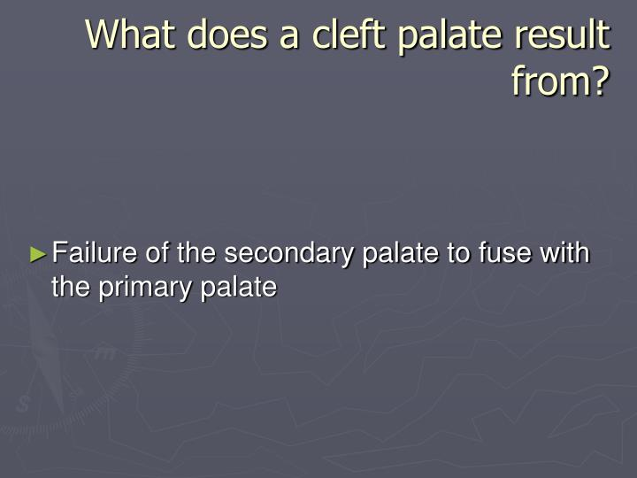 What does a cleft palate result from?