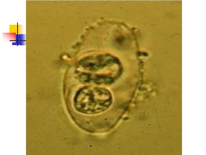 Oocysts of Isospora bel