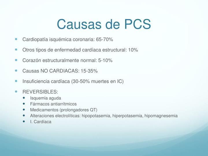 Causas de PCS