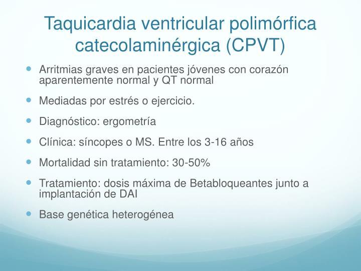 Taquicardia ventricular polimórfica