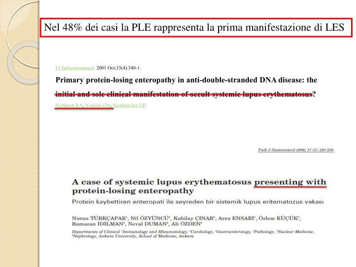 Nel 48% dei casi la PLE rappresenta la prima manifestazione di LES