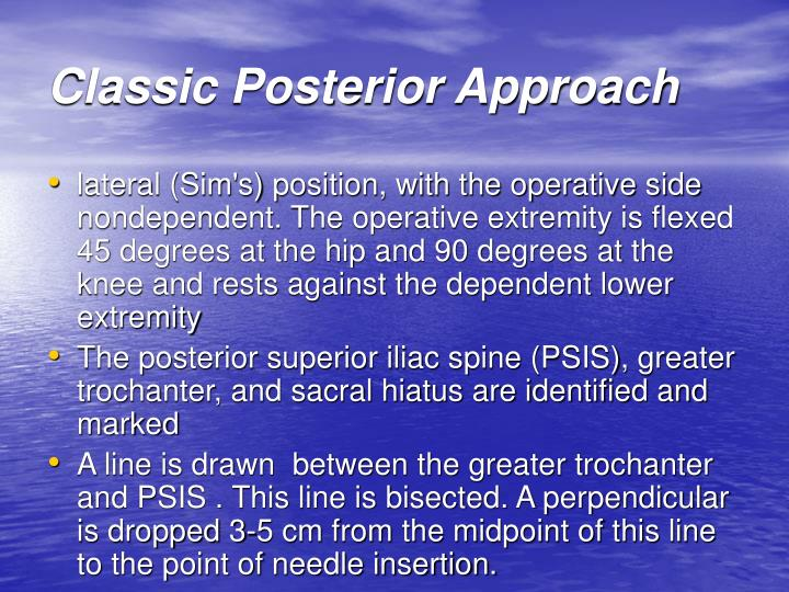 Classic Posterior Approach