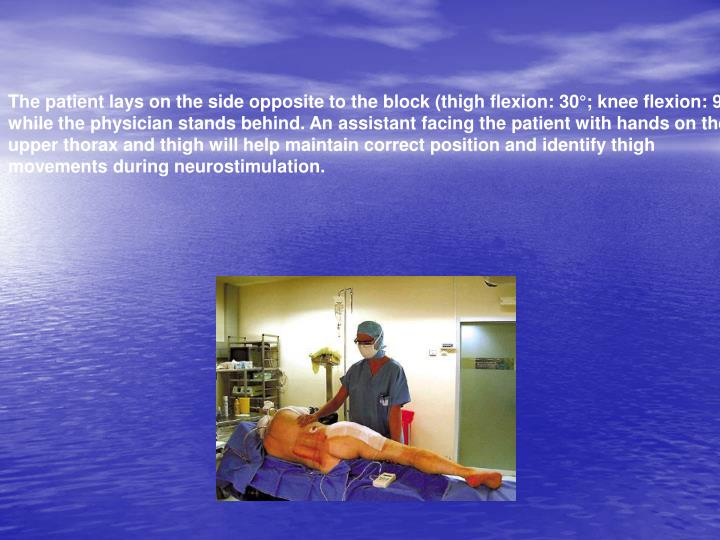 The patient lays on the side opposite to the block (thigh flexion: 30°; knee flexion: 90°)