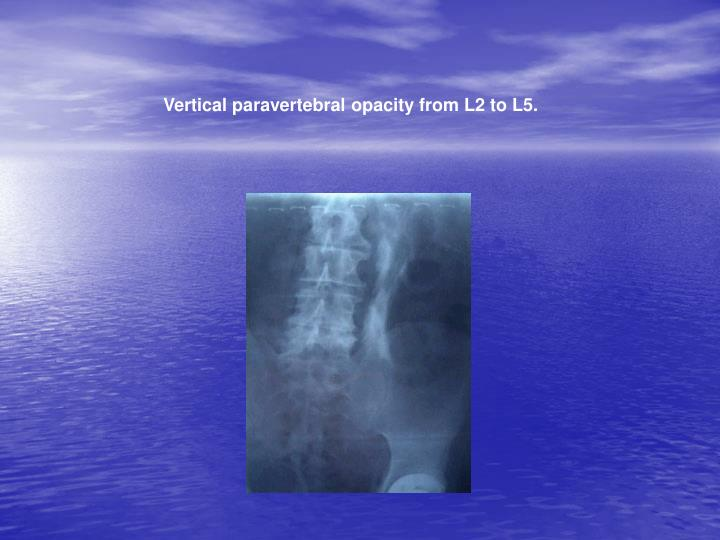 Vertical paravertebral opacity from L2 to L5.