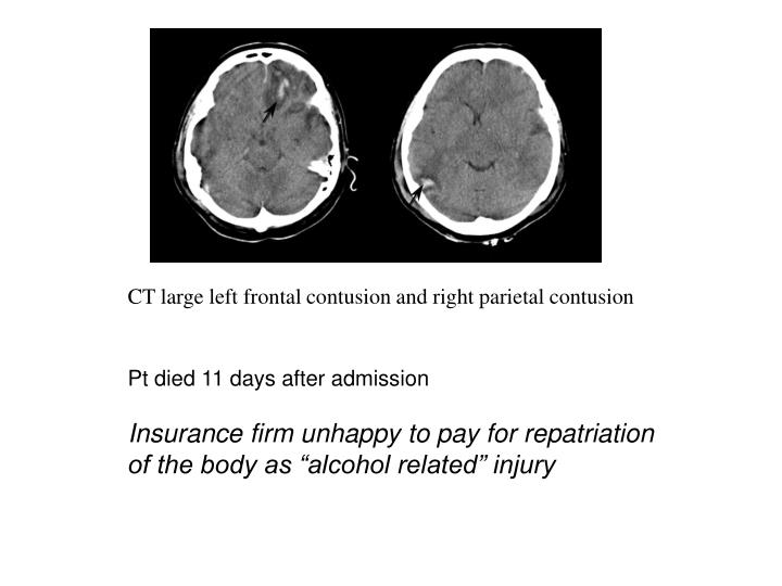 CT large left frontal contusion and right parietal contusion