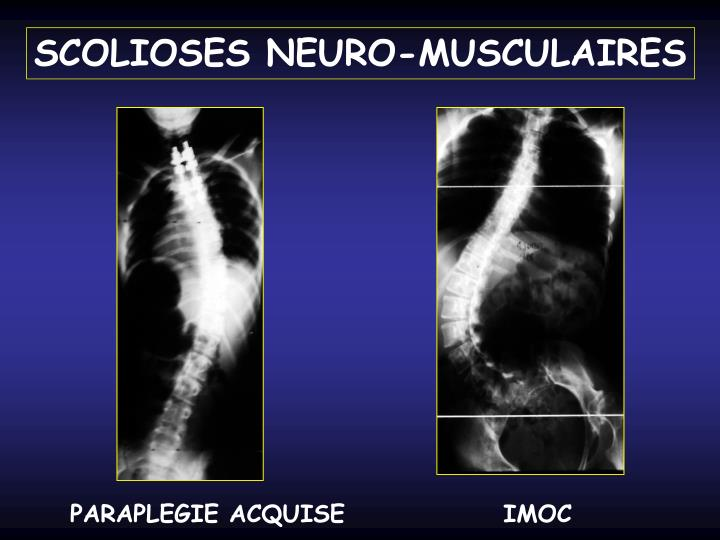 SCOLIOSES NEURO-MUSCULAIRES