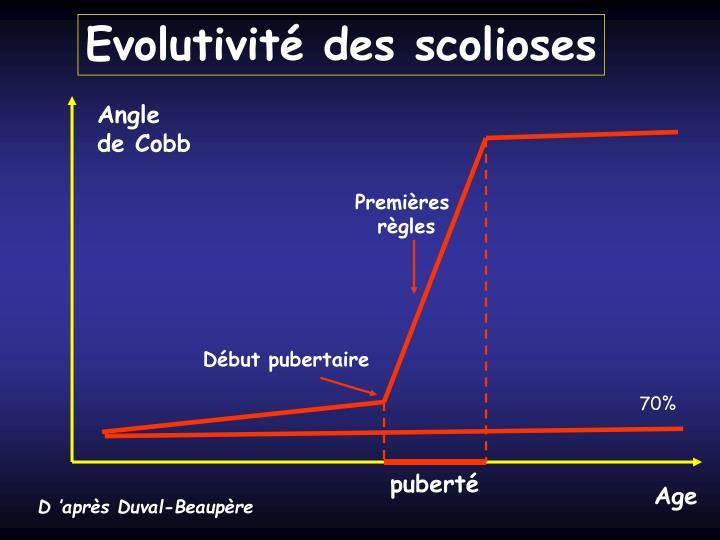 Evolutivité des scolioses