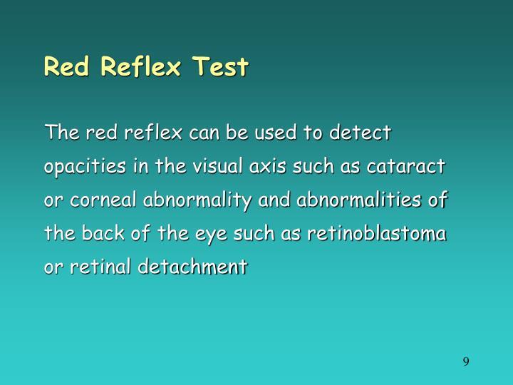 Red Reflex Test