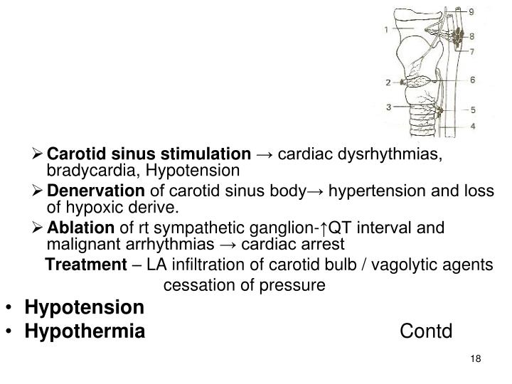 Carotid sinus stimulation