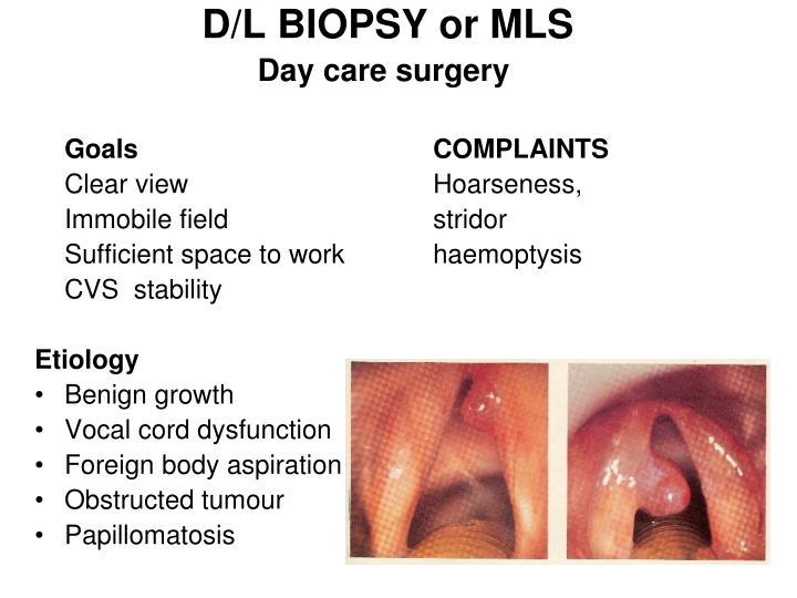 D/L BIOPSY or MLS