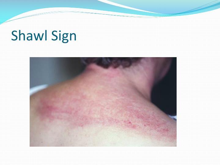 Shawl Sign