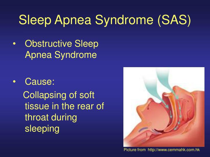 Sleep Apnea Syndrome (SAS)