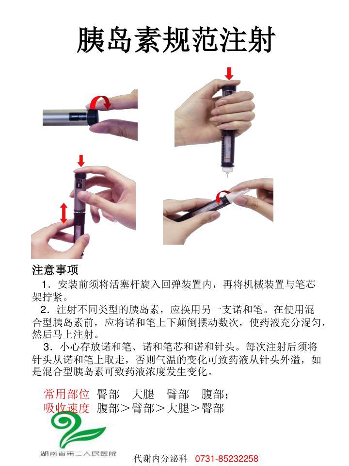 胰岛素规范注射