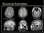 structural anomalies