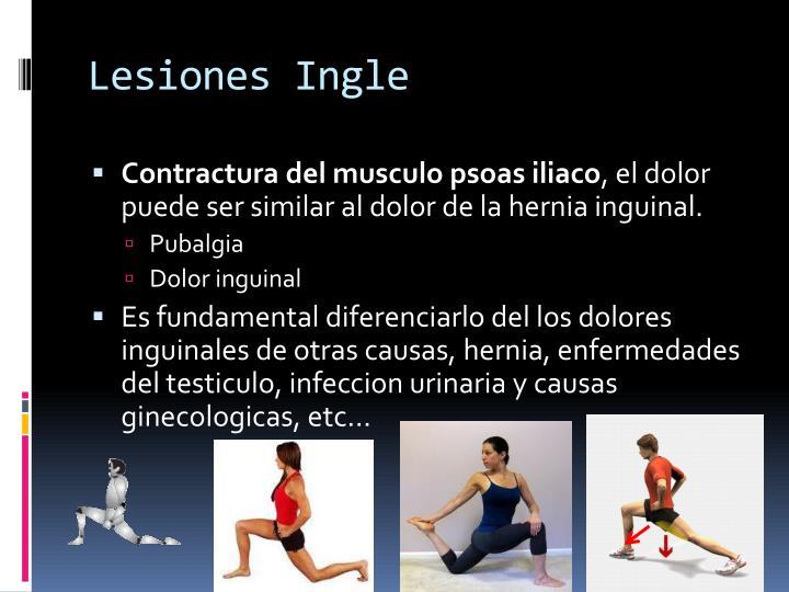 Lesiones Ingle