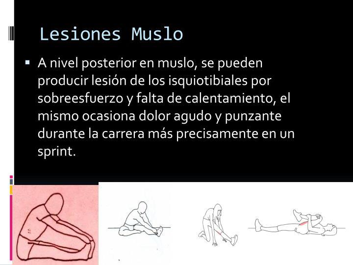 Lesiones Muslo