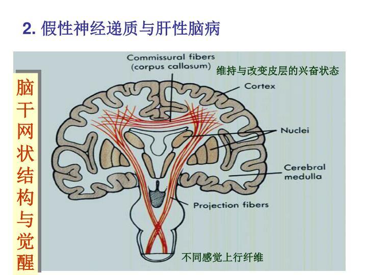 脑干网状结构与觉醒