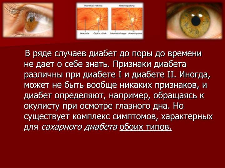 В ряде случаев диабет до поры до времени не дает о себе знать. Признаки диабета различны при диабете I и диабете II. Иногда, может не быть вообще никаких признаков, и диабет определяют, например, обращаясь к окулисту при осмотре глазного дна. Но существует комплекс симптомов, характерных для