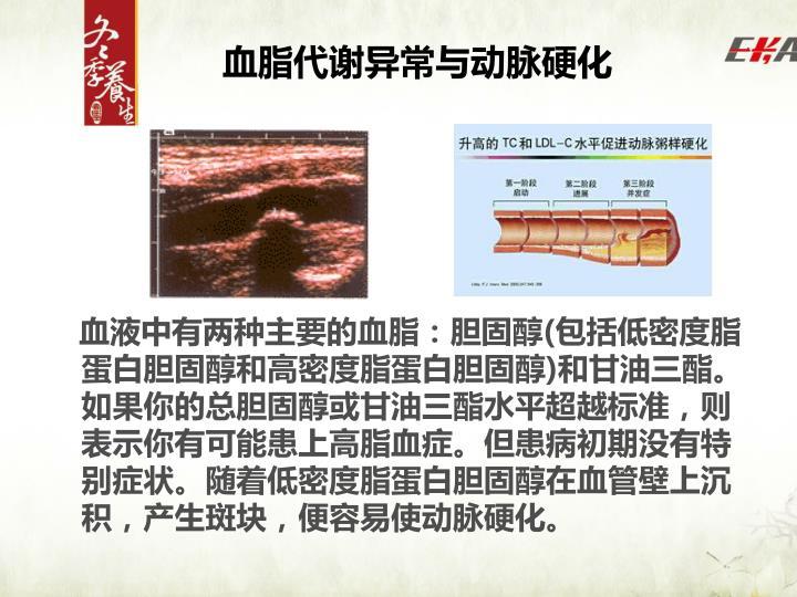 血脂代谢异常与动脉硬化