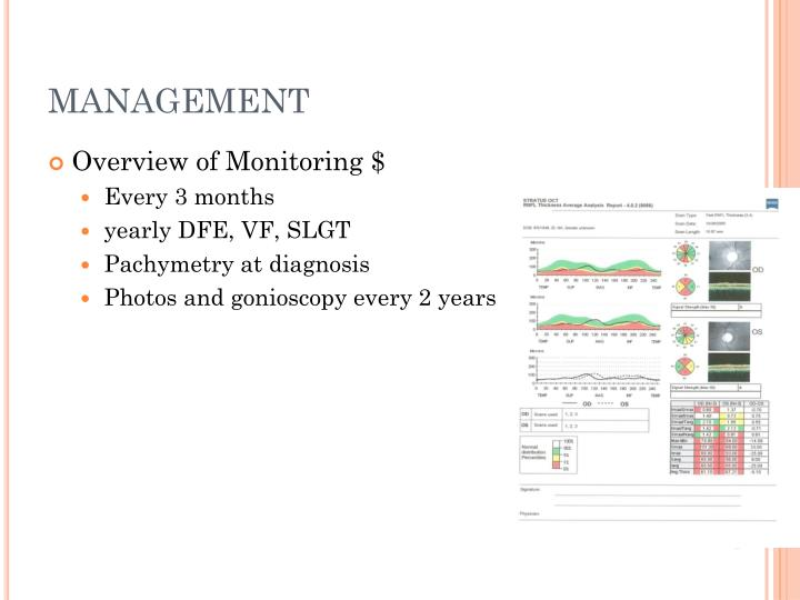 Ppt Introduction To Glaucoma Powerpoint Presentation