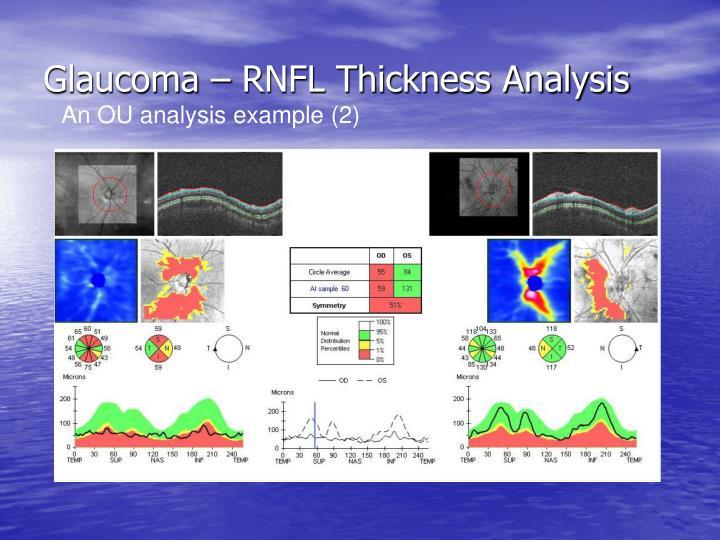 Glaucoma – RNFL Thickness Analysis