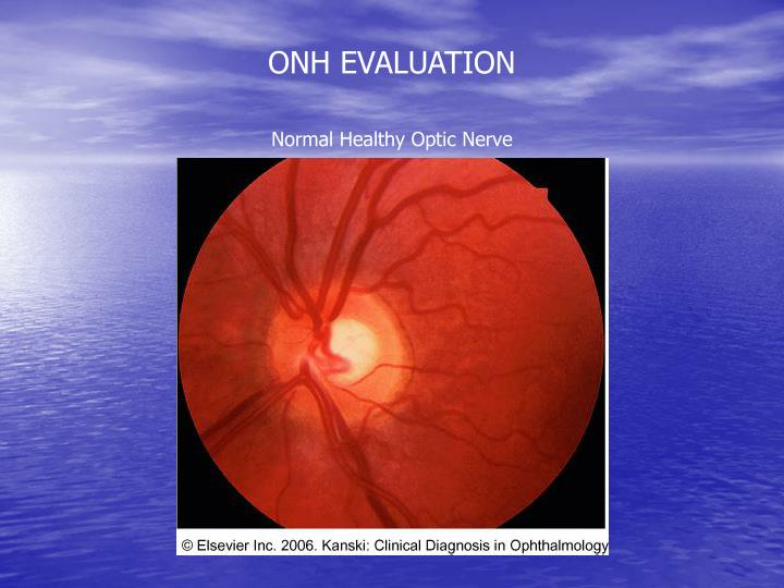 ONH EVALUATION