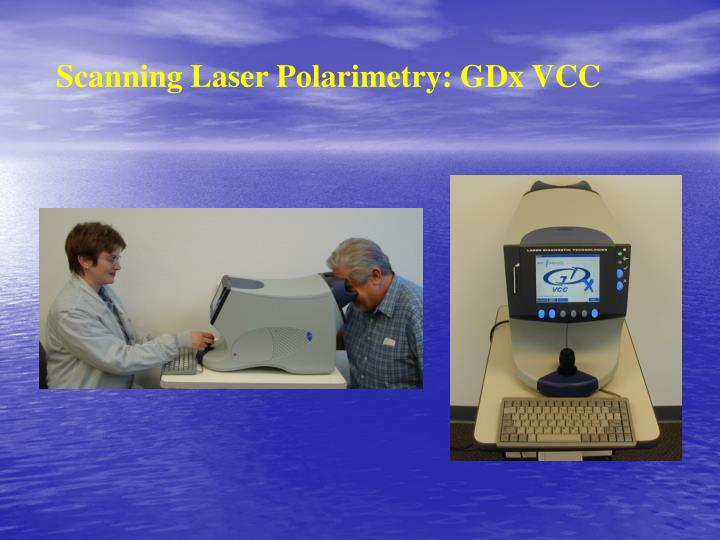 Scanning Laser Polarimetry: GDx VCC