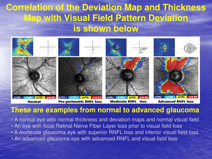 Correlation of the Deviation Map and Thickness Map with Visual Field Pattern Deviation