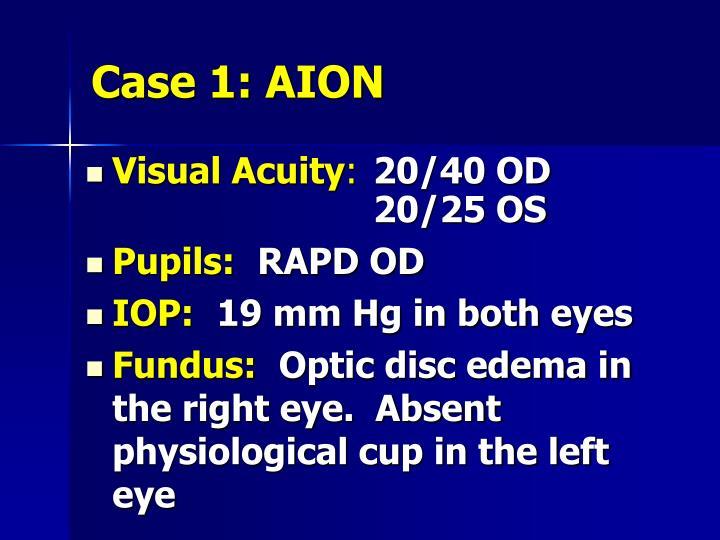 Case 1: AION