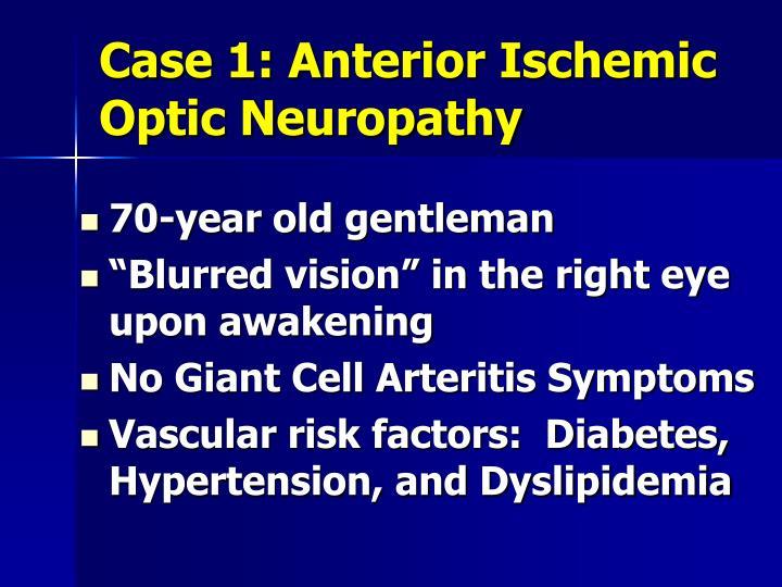 Case 1: Anterior Ischemic Optic Neuropathy