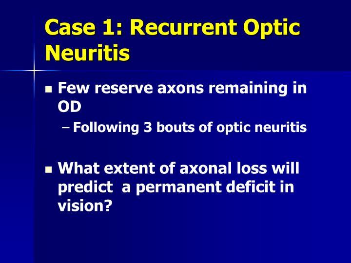 Case 1: Recurrent Optic Neuritis